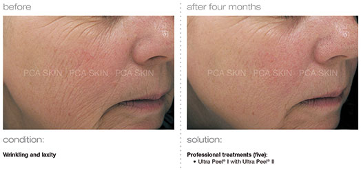 before and after PCA Skin chemical peel treatment