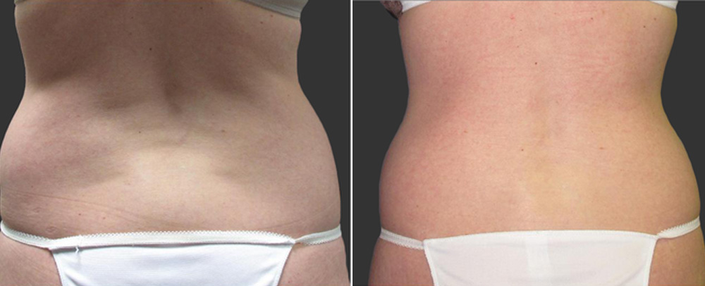 Before and After Exilis Treatment